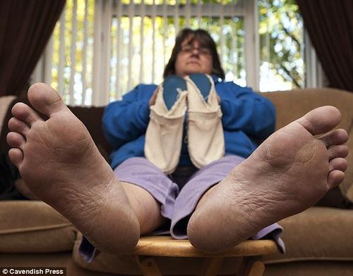 Người phụ nữ miễn đi làm vì dị ứng... giầy | Không đi làm vì dị ứng giầy,kỳ quặc,trường hợp dị ứng kỳ quặc,chuyện lạ đó đây